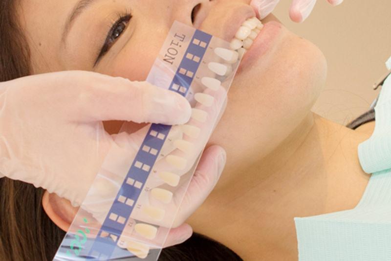 施術後の歯の色の確認